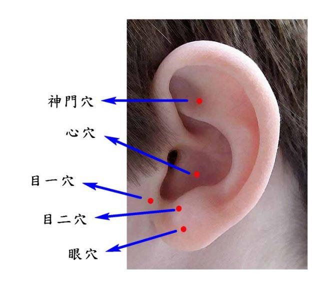 多多按摩耳上穴道可减缓儿童近视度数加深。